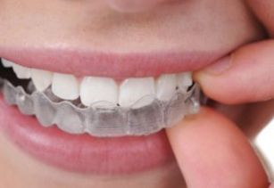 Invisalign treatment in Pune