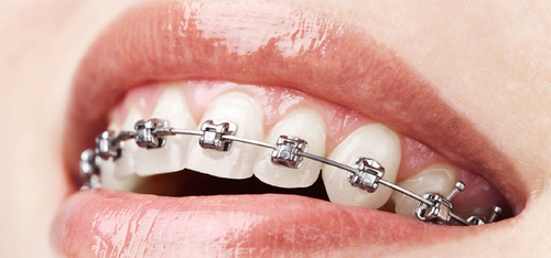 orthodontic treatment in Pune